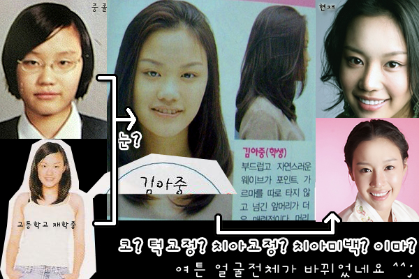 The Evolution of Actress Kim Ah Joong, plastic surgery in korea