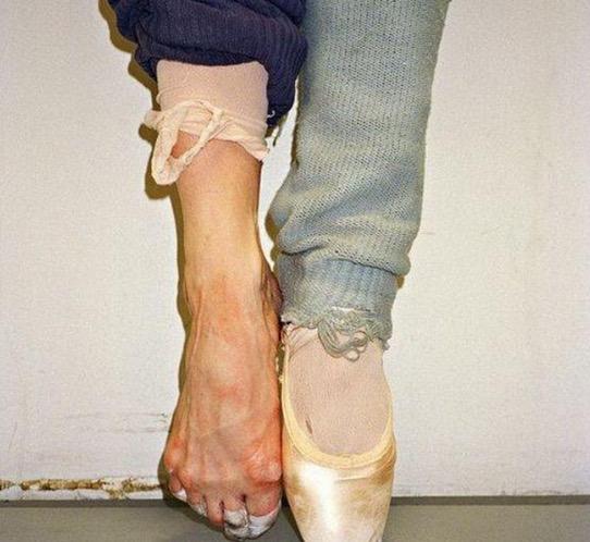 Saksikan Keadaan Kaki Penari Ballet yang Menakutkan