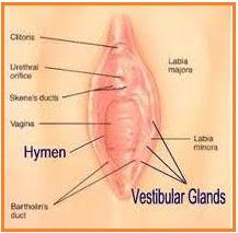 Erosion des vaginalen Introitus