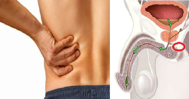 Do I Have Prostate Cancer? 12 Early Symptoms Men Should Never Ignore