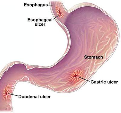 Symptoms of a stomach ulcer