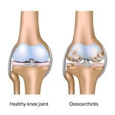 Cara Mengatasi Lutut Kopong