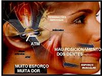 ATM e BRIQUISMO