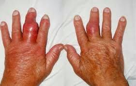 obat alami penyakit rematik dan asam urat
