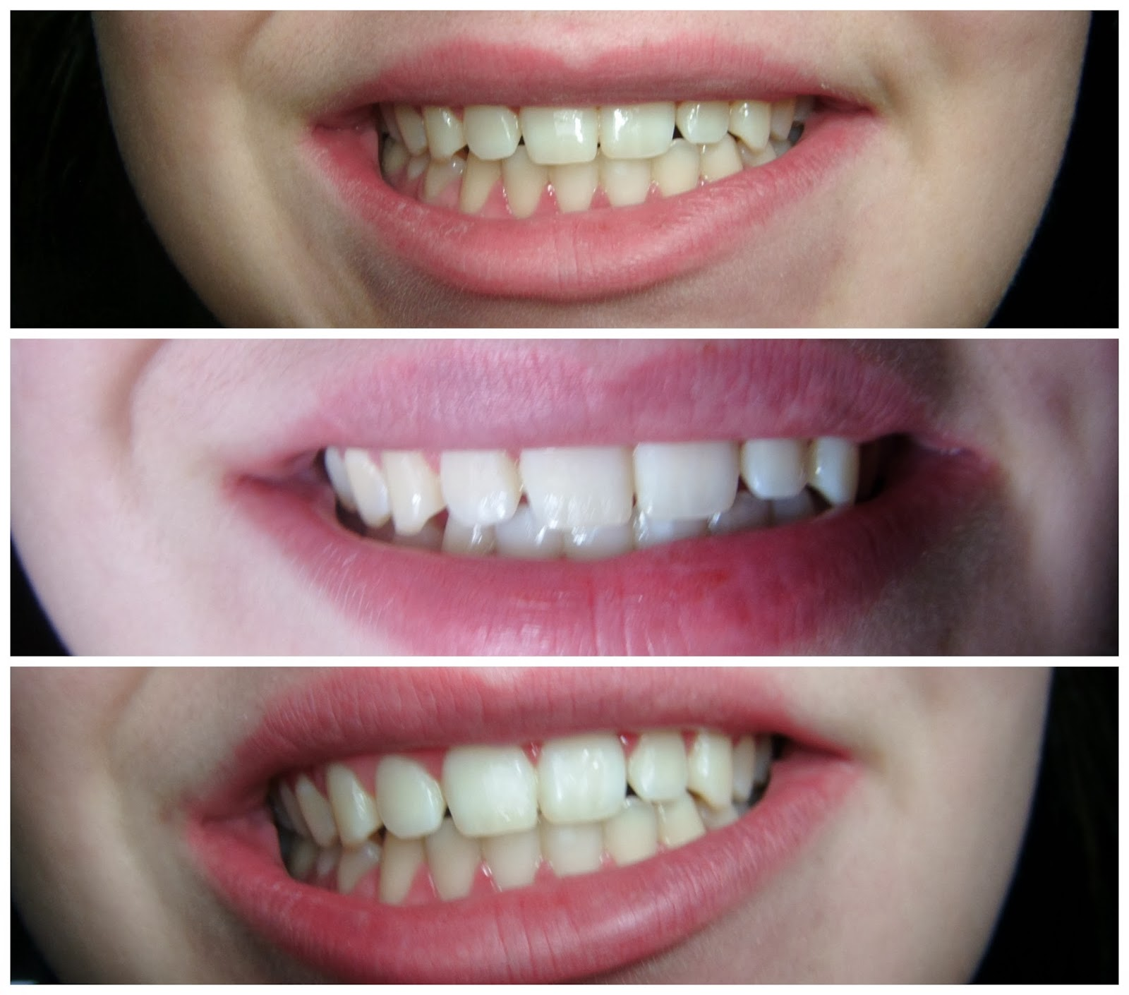 best teeth whiting services essay Teeth whitening have you ever wanted a white, attention grabbing, perfect smile it s been an estimated amount of over ten million americans that will.