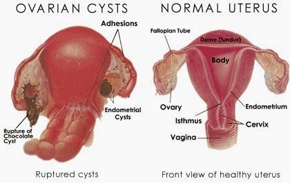 http://sayherbal.blogspot.com/2015/01/cara-mengobati-kista-endometriosis.html