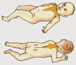 Distribuição da gordura castanha nos bebés