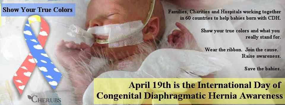 April 19th - Day of International Congenital Diaphragmatic Hernia Awareness