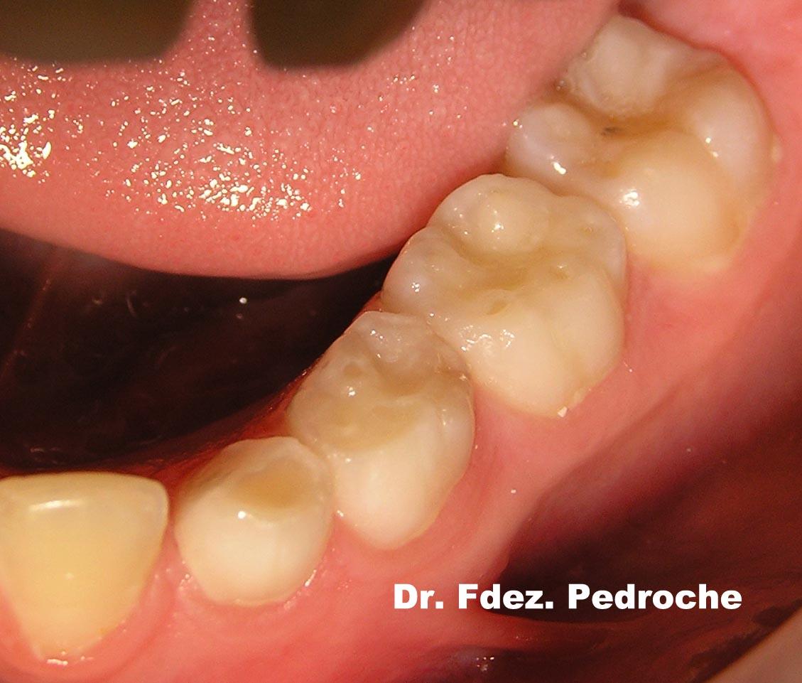 Una Boca para toda la Vida: ¿Como funciona la boca de los 3 a los 6 ...