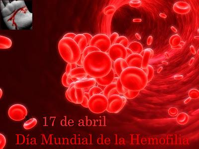 17 de abril, Día Mundial de la Hemofilia