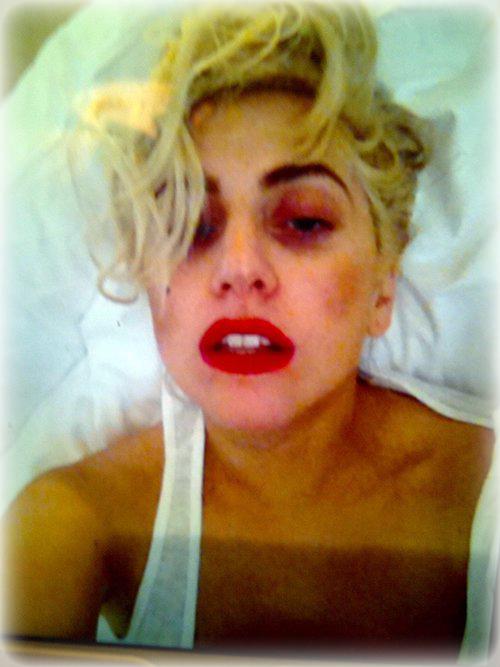 Lady Gaga luego del golpe en la cabeza - Cantante - famosa