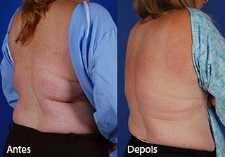 Fotos de criolipólise nos flancos e costas