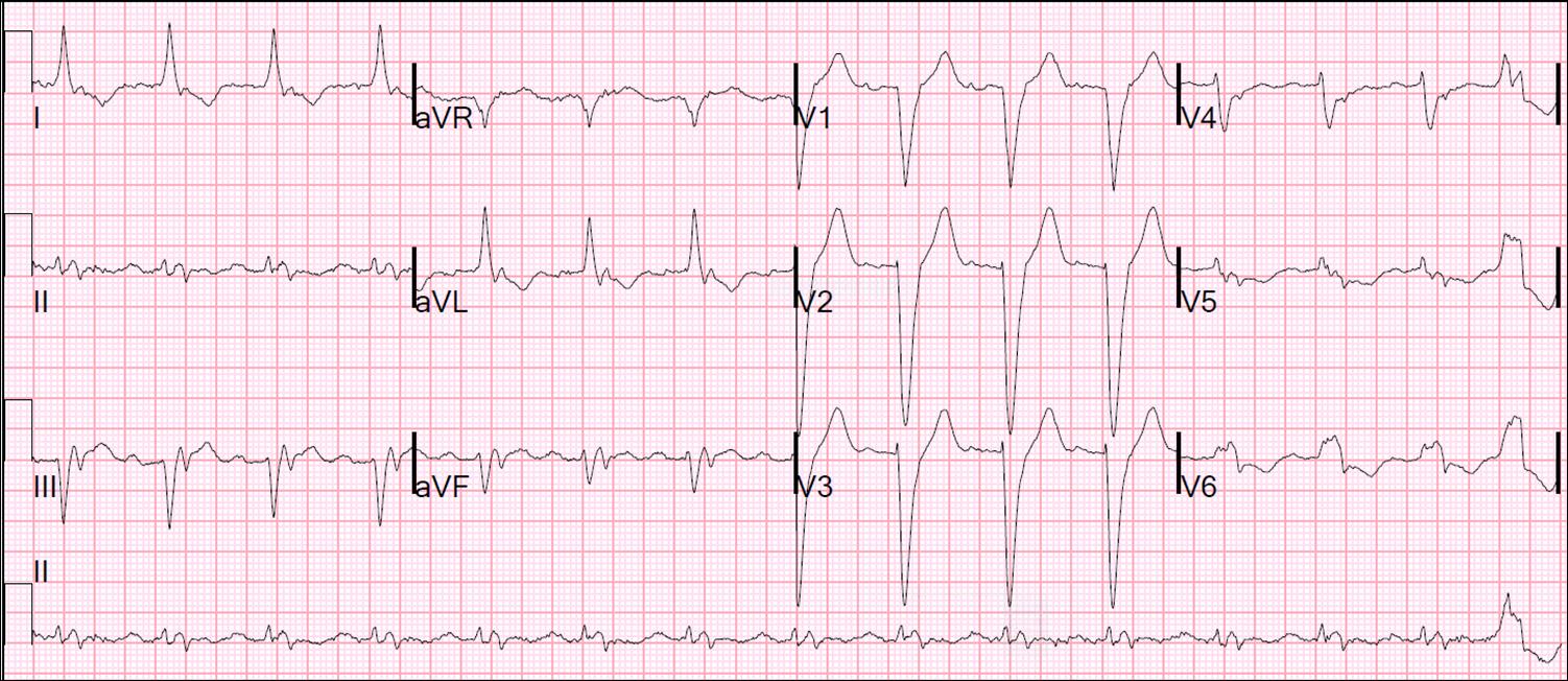 pulse intravenous steroids