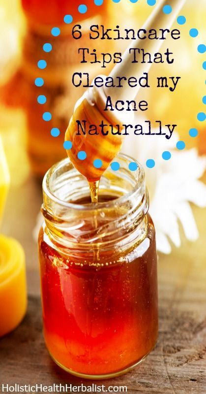 6 Skincare Tips That Cleared my Acne Naturally