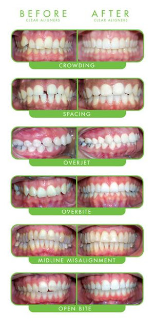 ClearCorrect invisible orthodontic braces, before and after photos