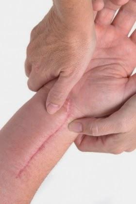 10 Tips para Cuidar Las Cicatrices
