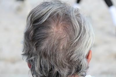 Comprendre la croissance des cheveux de perdre les poils indésirables