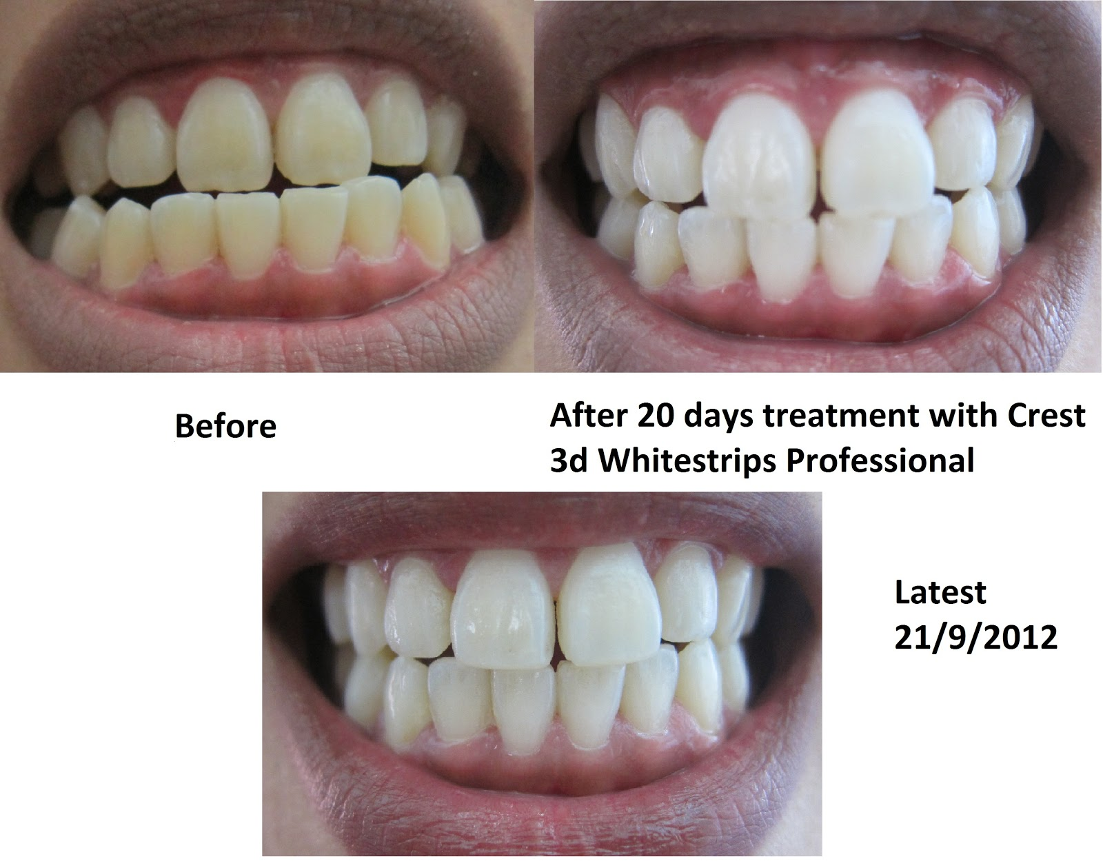 The overall winner in our tooth whitener test, Crest 3D White Professional Effects Whitestrips with Advanced Seal easily outperformed the uctergiyfon.gqer testers who were willing to put in.