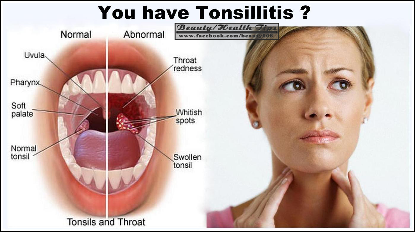 Useful Information  7 Tips On How To Treat Tonsilitis With