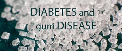 Link Between Diabetes And Periodontal Disease