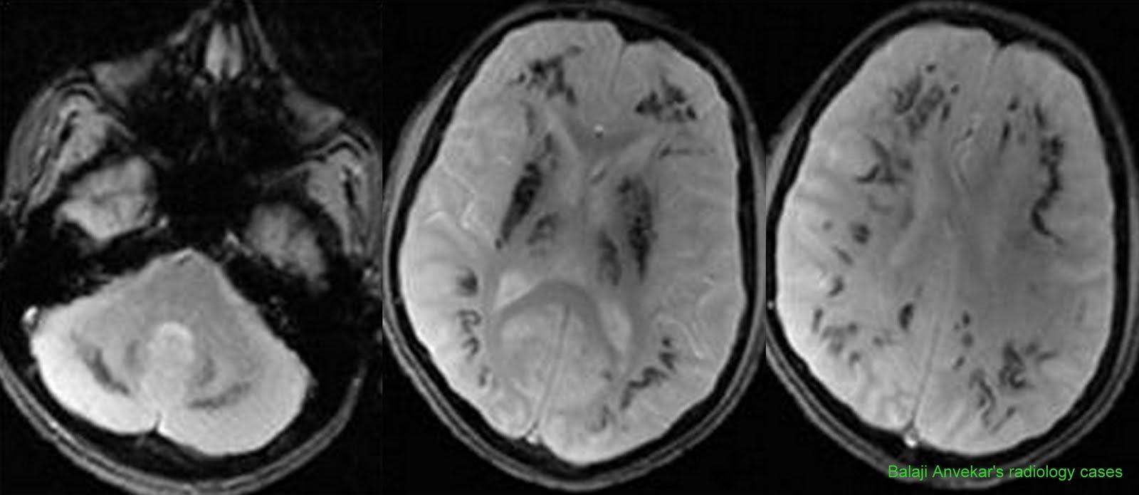 Neuroradiology Cases: Fahr's disease MRI