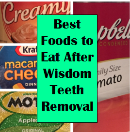 Best Soft Foods To Eat After Wisdom Teeth Removal