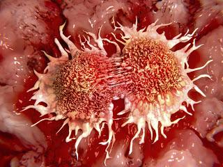 Tumours Vary Depending On Genetic Background