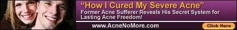 Simple Holistic System For Curing Acne