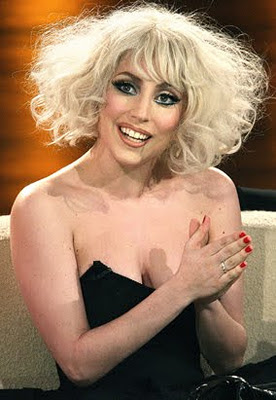 Lady Gaga normal