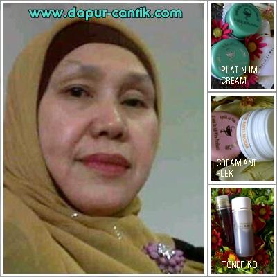 Cream Adiwira By Produk Dr Adiwira Testimoni Ibu Ona Gorontalo Irt