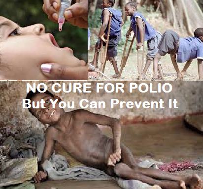 All About Polio Causes and Cures.