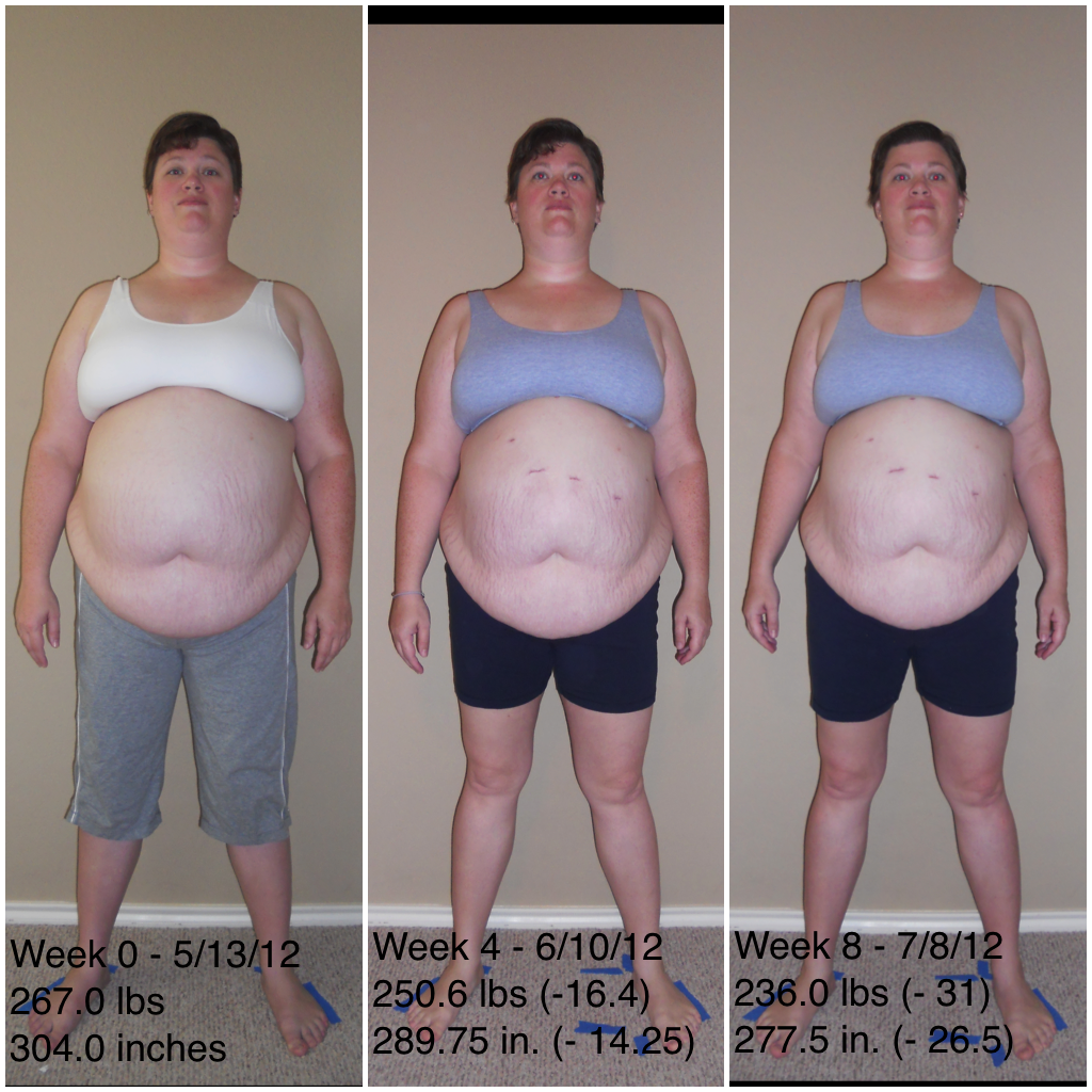 gastric bypass before and after Car Pictures