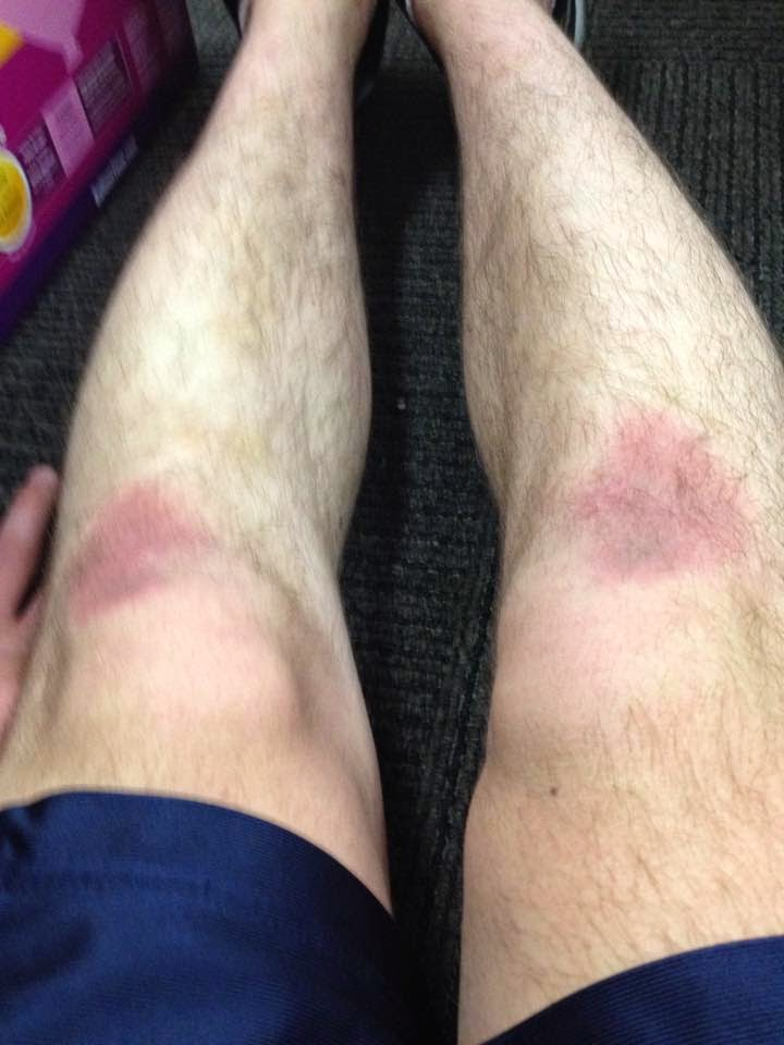 Rug Burn On Knee Won T Heal Rugs Ideas