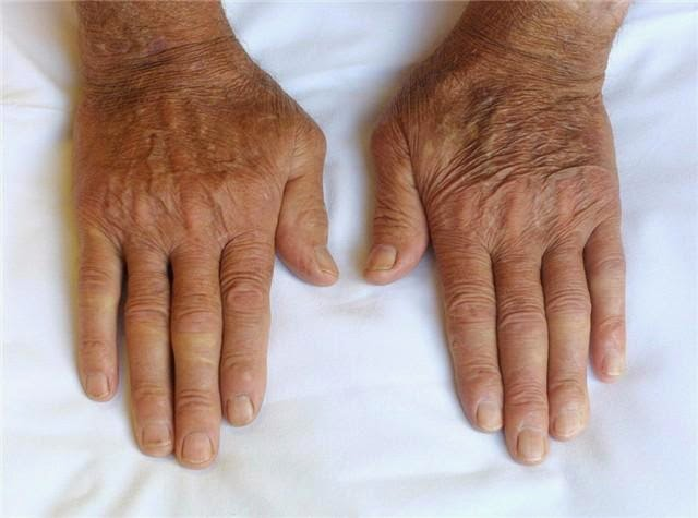 Que es la Artritis Psoriasica