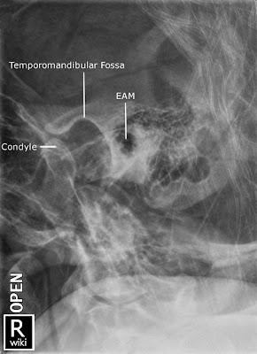 mastoids x ray