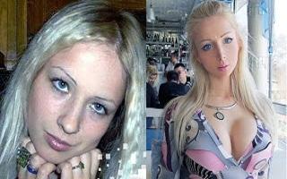 Chocante: ANTES e DEPOIS da Barbie humana!