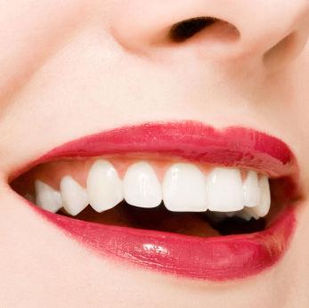Softskill Gunadarma Cara Memutihkan Gigi Secara Alami