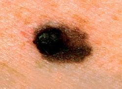 skin cancer moles