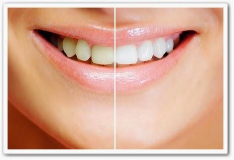 онлайн Как отбелить зубы Неумывакин И.П