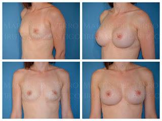 operación senos