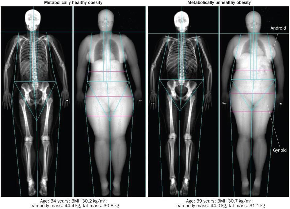 здоровое и нездоровое питание картинки для детей