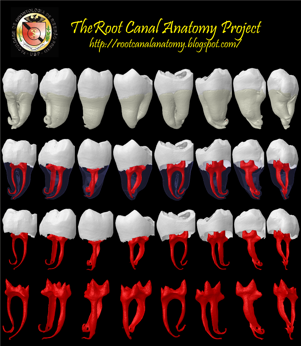 The Root Canal Anatomy Project Mandibular Third Molar