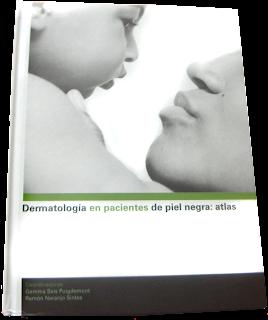 """Las personas de distintas razas tienen distintos tratamientos para los mismos síntomas y patologías por ello el Libro """"Dermatología en pacientes de piel Negra"""" nos ayuda a conocer la diferenciación y a actuar"""