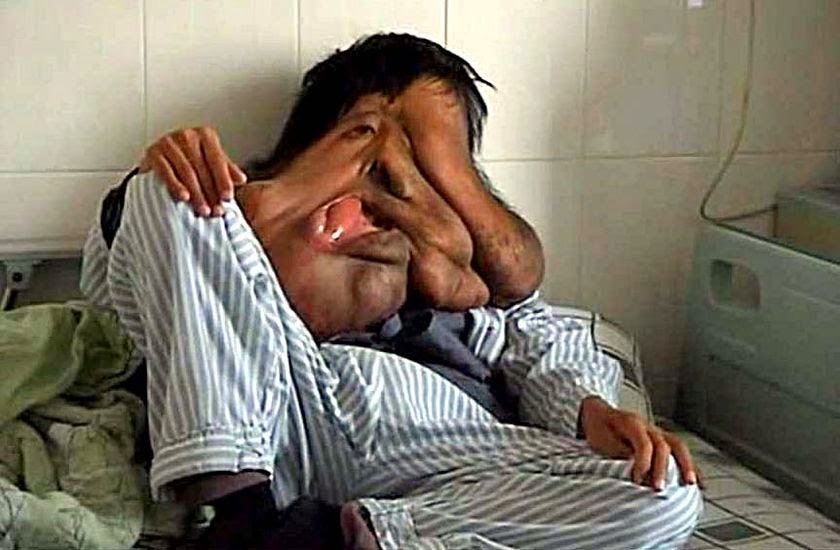 10 People With Shocking and Extreme Deformities