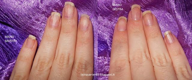 Essence Gel Nails at Home dopo la rimozione: a sinistra metodo peel off, a destra metodo acetone.