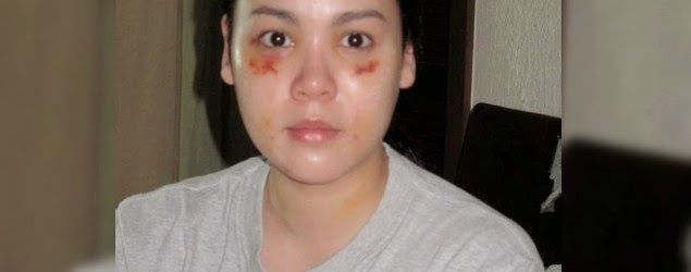 CLAUDINE BARRETTO BATTERED WIFE 4