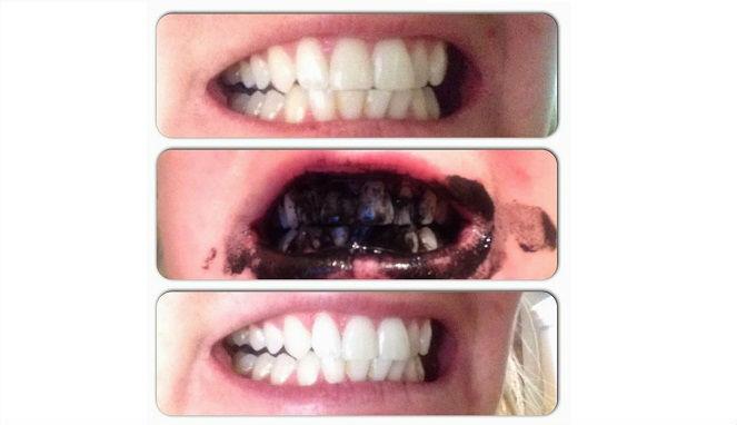 Ingin Gigi Putih Dalam Seminggu Ini Rahasianya Tergemes