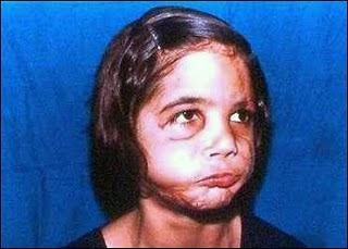 Rapariga após operação plástica