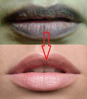 cara memutihkan bibir hitam agar putih