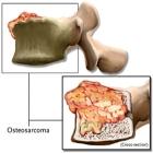 Cancer Osseo, novas esperanças de tratamento
